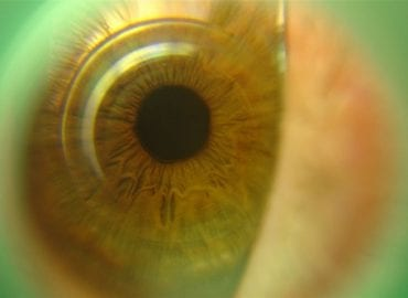 Contact lens for Nearsightedness and Astigmatism